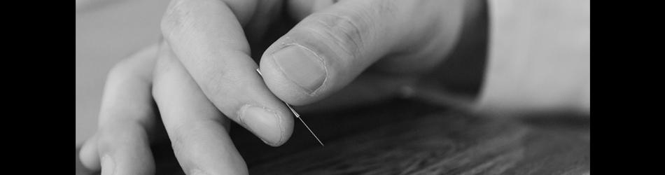 江戸川鍼灸院の刺鍼写真